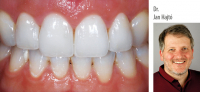 Dr. Jan Hajtó: Functional and Esthetic Anterior Laminate Veneers - Theory and Clinical Application - Kurs: 9817